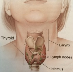 Care For Thyroid Lumps And Cancer